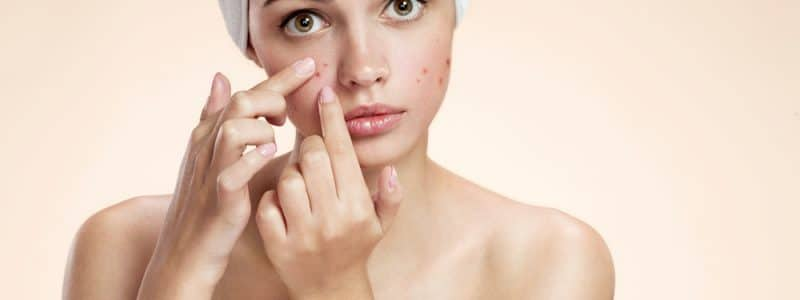 acne-behandeling-foto